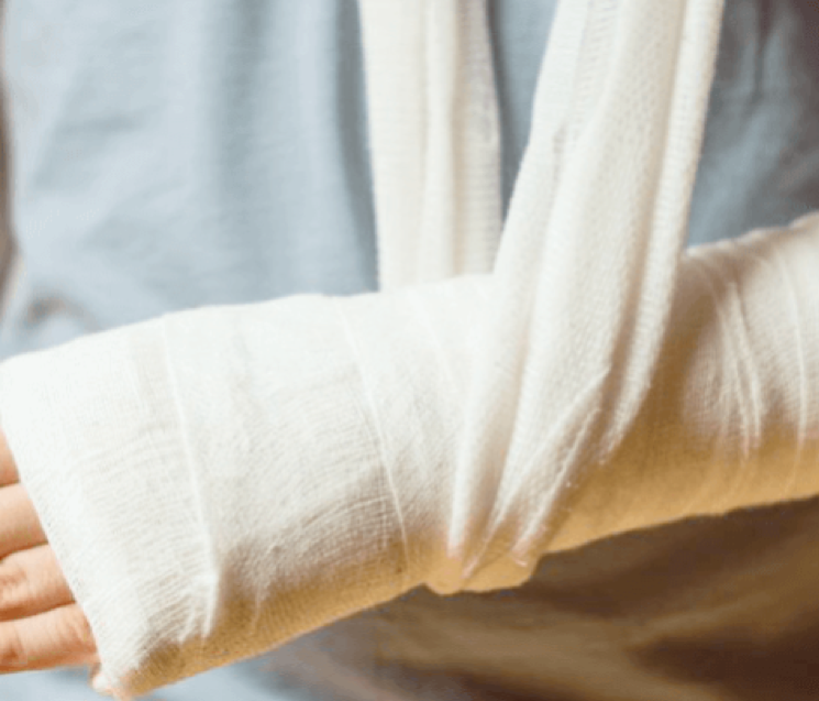 Medida Provisória n° 905/2019 muda o Auxílio Acidente
