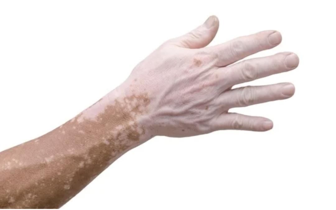 Rede varejista de São Paulo deverá reintegrar caixa que tem vitiligo
