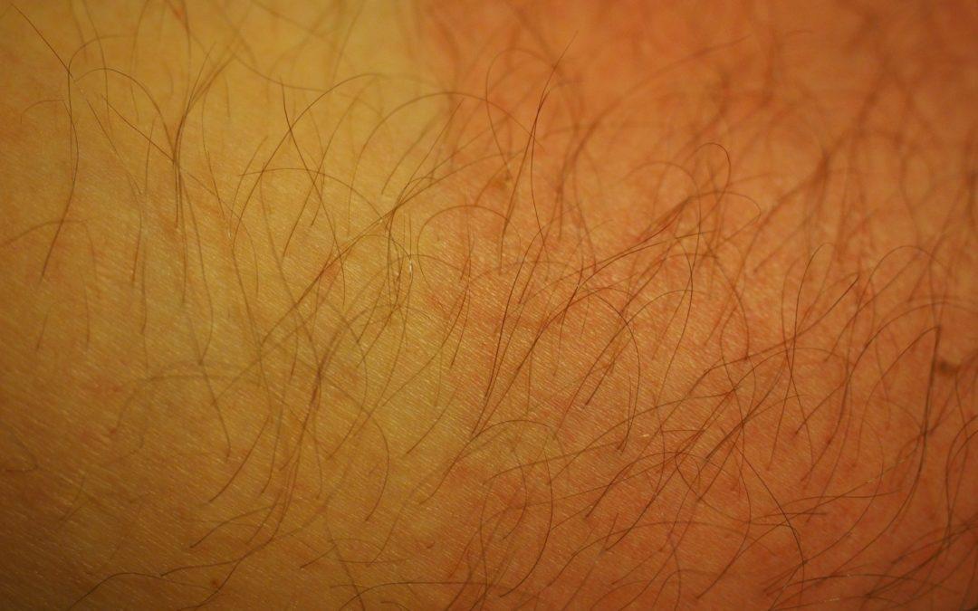 https://pixabay.com/pt/photos/queimadura-solar-pele-cabelo-1522092/
